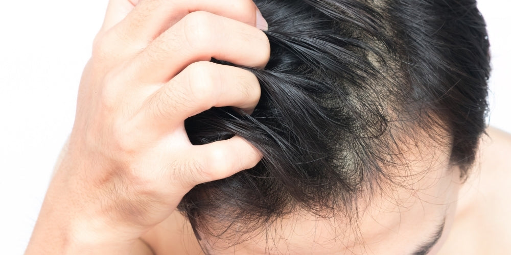 what causes itchy scalp