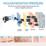 Blackhead Remover Vacuum - Ralthy Electric Blackhead Removal Tools Pore Cleaner Extractor Fast USB Rechargeable Pore Vacuum Including 4 Patterns and 5 Suction Probes for Women and Men [Hot Compress]