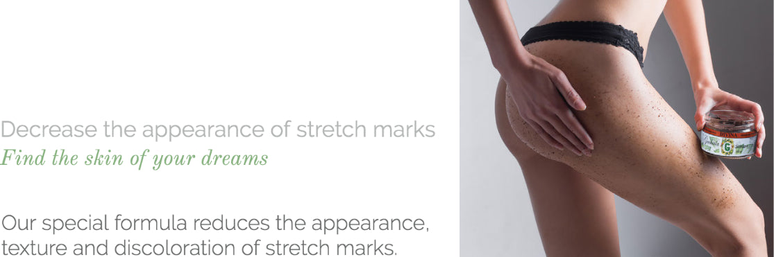 Our special formula reduces the appearance, texture and discoloration of stretchmarks.