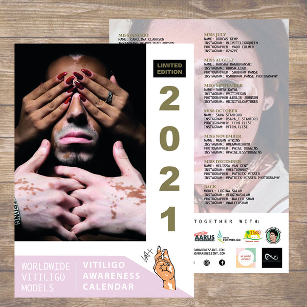 [SOLD OUT]  Vitiligo Awareness Calendar 2021 [LIMITED EDITION]