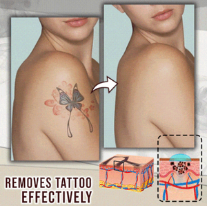 Natural Plant Extract Tattoo Removal Cream