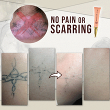 Load image into Gallery viewer, Natural Plant Extract Tattoo Removal Cream