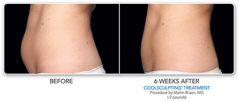 CoolScupting, Fat Freezing, Before-After, Yanhee Hospital.