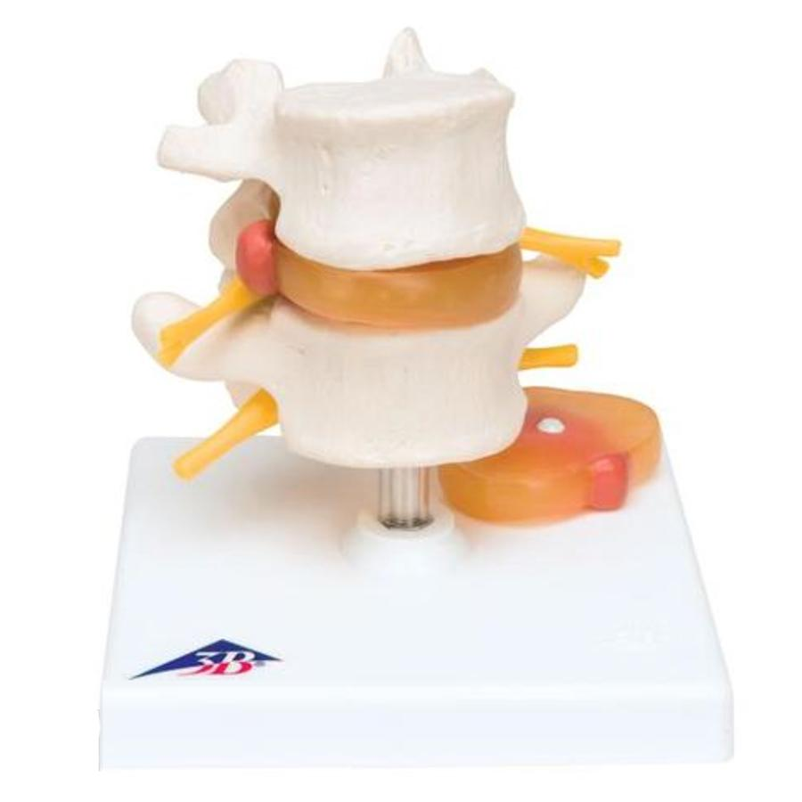 MODEL LUMBAR SPINAL COLUM WITH PROLAPSED INTERVERTEBRAL DISC