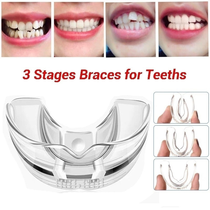 3 Stages Dental Orthodontic Braces Appliance Braces Alignment Trainer Teeth Retainer Bruxism Mouth Guard Teeth Straightener