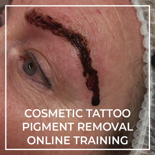 ESSENTIAL | Cosmetic Tattoo Pigment Removal Online Course - THink Aesthetics
