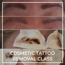 Load image into Gallery viewer, ESSENTIAL | Cosmetic Tattoo Removal Class - THink Aesthetics