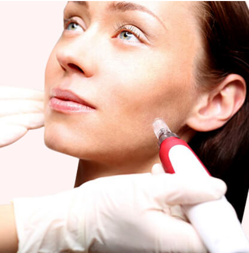 3 Microneedling Treatments