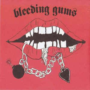 Bleeding Gums - II