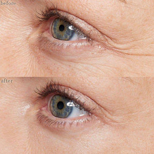 Ageless Anti-Wrinkle Eye Cream
