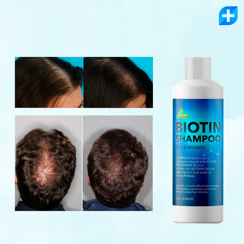 Biotin Shampoo Men & Women / Anticaída y Anticaspa.