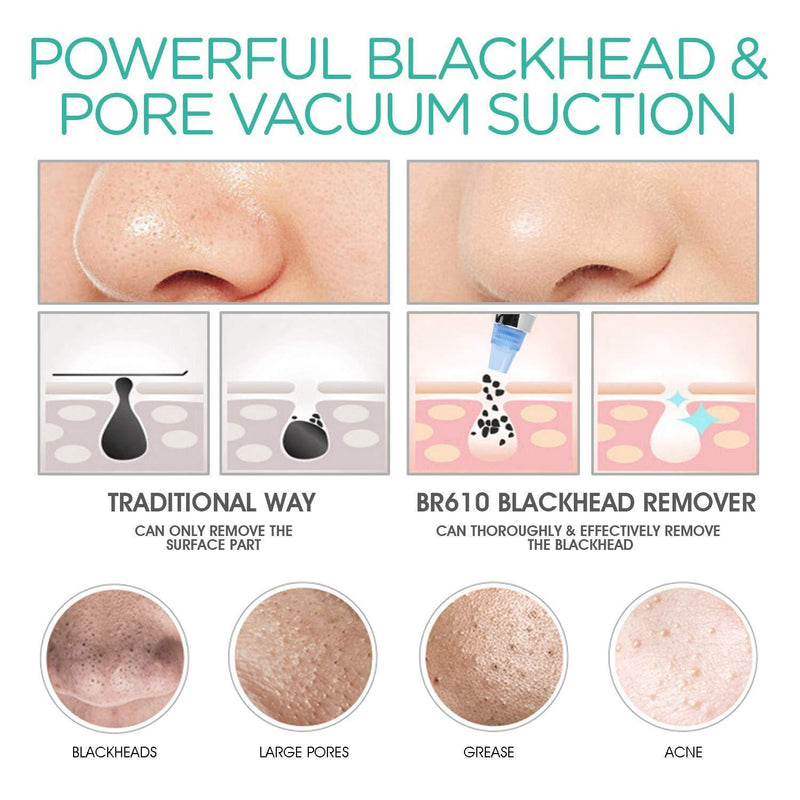 VOYOR 4 IN 1 Blackhead Remover Pore Vacuum 5 adjustable strength level & LCD Screen- Model: BR610 (White) - DealsnLots