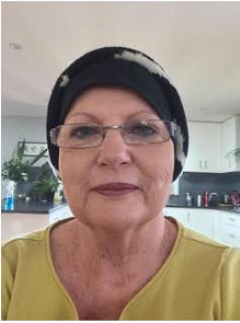 woman who has received chemotherapy treatments