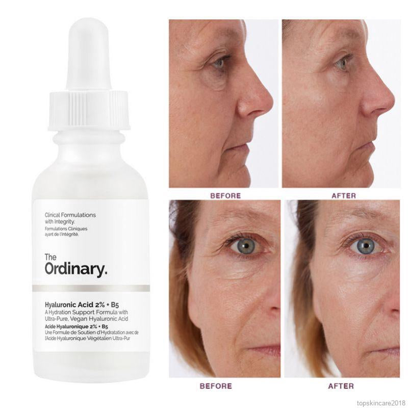 THE ORDINARY HYALURONIC ACID 2% + B5 – 1OZ/30ML & 2OZ/60ML - AUTHENTIC FROM CANADA