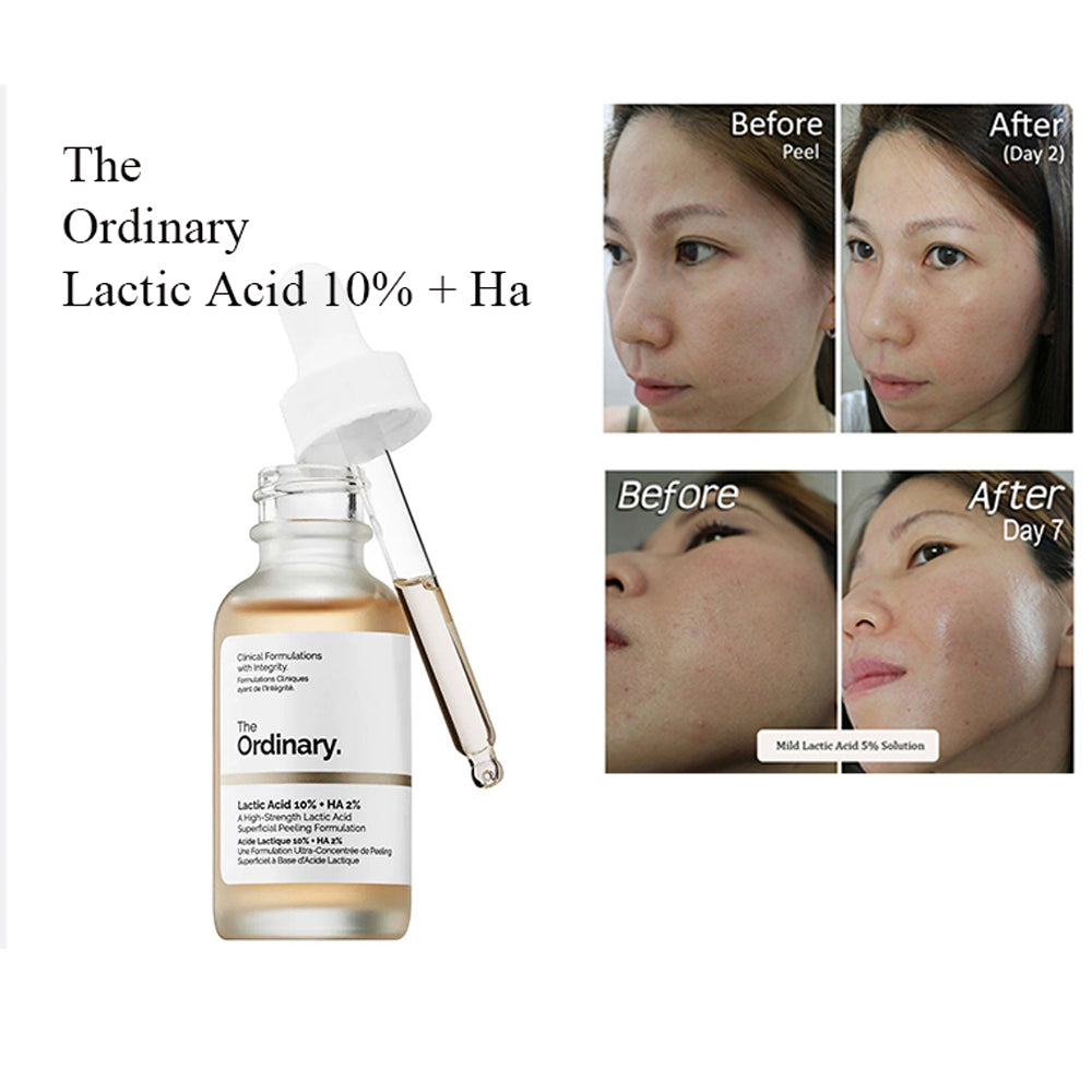 THE ORDINARY LACTIC ACID 10% + HA – 1OZ/30ML – ORIGINAL ORDINARY FROM CANADA