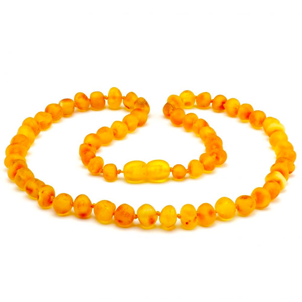 Baltic Amber Cognac Necklace Raw Unpolished for Adults Teens-Baltic Amber Teething Necklace-Unique Baltic Amber