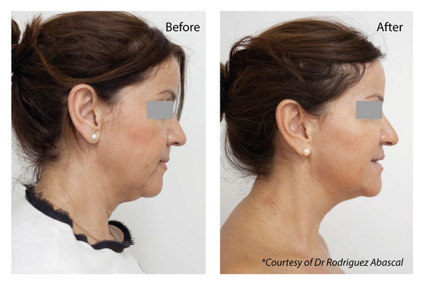 Profhilo Hyaluronic Acid Injections Two Treatments