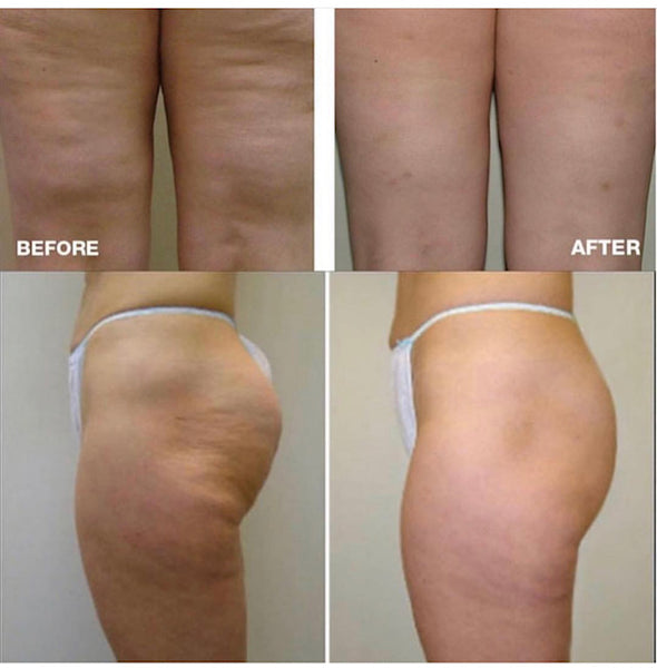 VelaShape Inch Loss & Cellulite Treatment Intro Offer Course of 4+2 FREE (save €300)