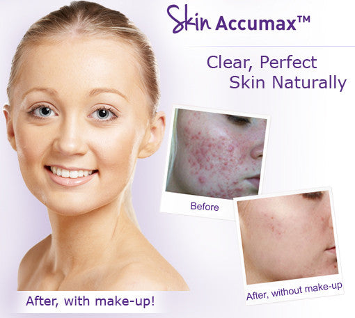 Skin Accumax Supersize 180 Capsules