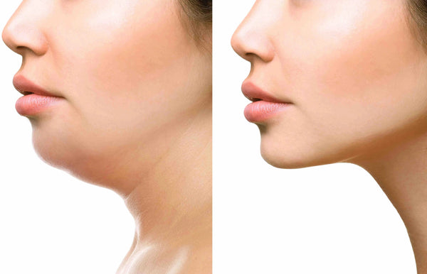 SculpSure Chin Fat Reduction Two Treatments (save €601)