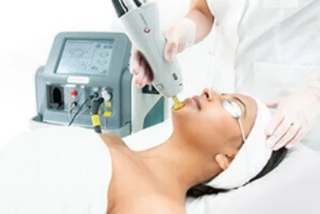 Laser thread vein removal for small area face course of 5+2 FREE! (save €101)