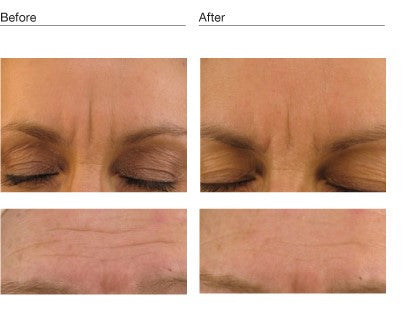 Environ Focus Frown Treatment