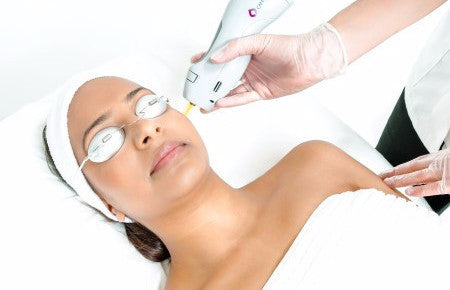 Laser Full Face Course of 6 only ONLY €30 per session!