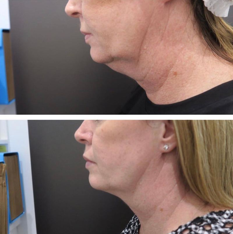 SculpSure Chin Fat Reduction two treatments