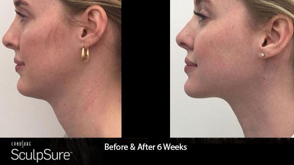 SculpSure Chin Fat Reduction Two Treatments+FREE Sublime RF (save €401)