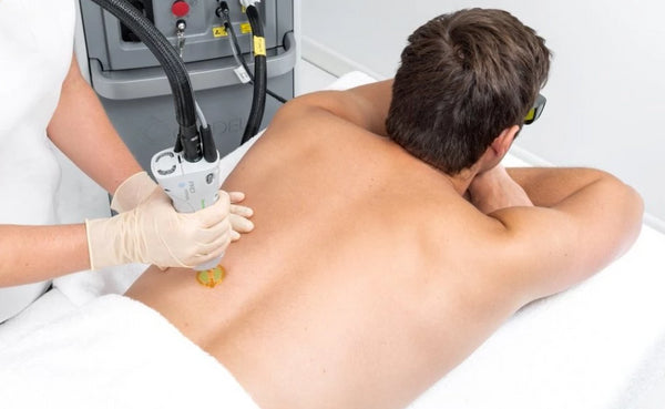 Laser for Men: Full back or full chest & stomach and shoulders (save €201)