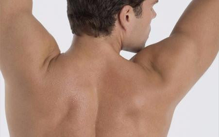 Laser for Men: Full Back or Chest & Stomach course of 6 (save €101)