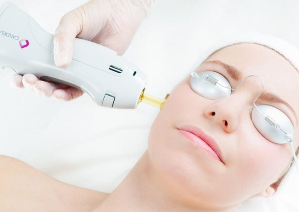 Skin Month Offer: Laser skin rejuvenation for anti-ageing, pigmentation or redness course of 5 +3 FREE LED Sessions (save €261)