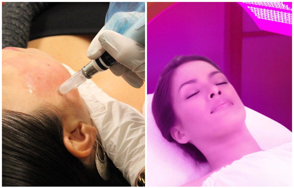 Micro-Needling & LED Phototherapy Combo 60-Mins