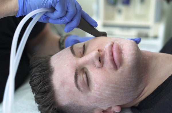 SaltFacial Glow Resurfacing Treatment Course of 3+1 FREE +LED Session (Save €211)