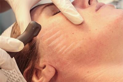 SaltFacial Glow Luxury Skin Resurfacing Treatment course of 3 (save €101)