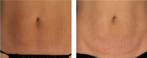 Skin Month Offer: Sublative Skin Resurfacing for Stretch Marks course of 3 +3 LED Sessions (Save €461)