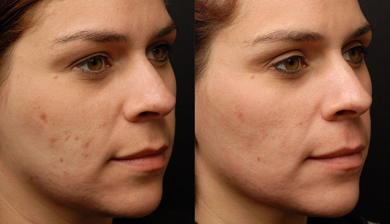 Sublative Skin Resurfacing course of 2+1 FREE +2 FREE Sublime Skin Tightening Treatments (Save €701)