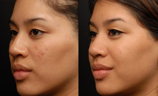 Full Face Sublative Skin Resurfacing Course of 3 (Save €201)