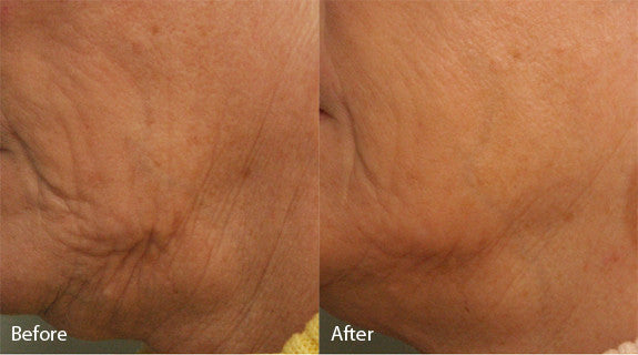 Smooth & Tighten Package: Sublative Skin Resurfacing course of 2 +Two FREE +2 FREE Sublime Skin Tightening Treatments (Save €450)