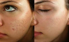 Sublative Skin Resurfacing course of 2+1 FREE (Save €351)