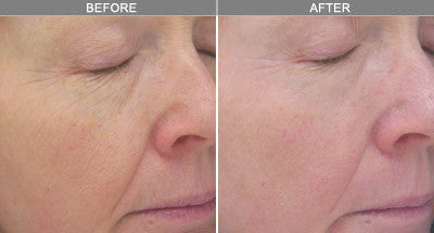 Autumn Glow Package: Sublative Skin Resurfacing course of 2+1 FREE +2 FREE SaltFacial Exfoliation Treatments (Save €541)