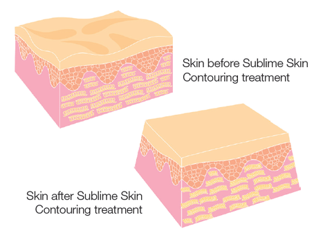 Skin Month Offer: Sublative Skin Resurfacing course of 3 +3 Salt Exfoliations +3 LED Sessions (Save €611)