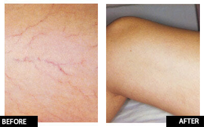 Laser thread vein removal for small/medium area legs course of 3+1 FREE (save €101)