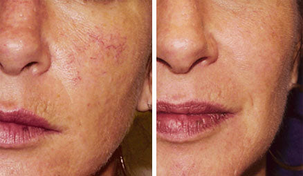 Laser thread vein removal for full face course of 3+1 FREE! (save €101)