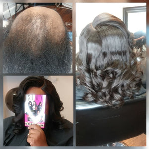 Sewin for thinning and balding