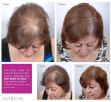 Load image into Gallery viewer, Nutrafol Women Advanced Thinning Hair & Hair Loss Supplement - 120 Capsules