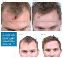 Load image into Gallery viewer, Nutrafol Men Advanced Thinning Hair & Hair Loss Supplement - 120 Capsules