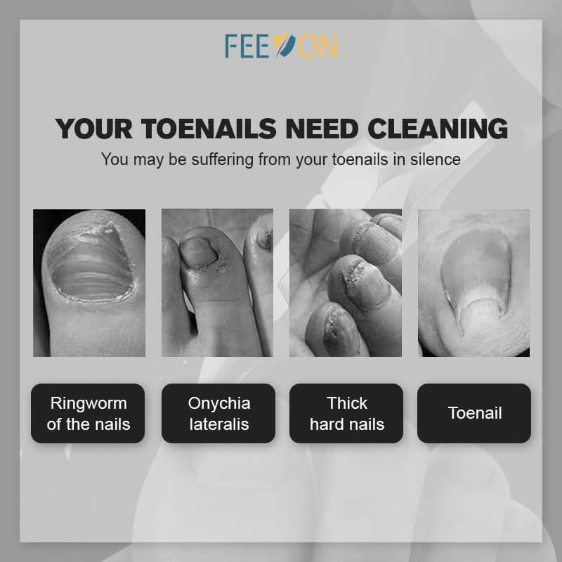 FEEON® Medical-grade Nail Clippers?USA Fast Delivery?(50% OFF )