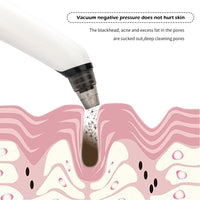 Electric Heatable Blackhead Remover