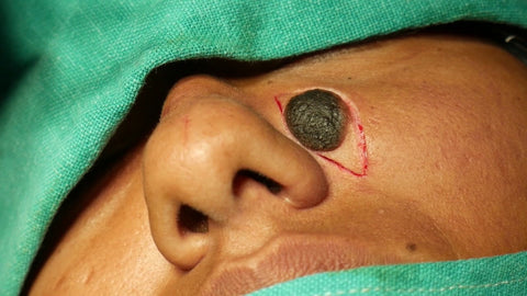 Mole Removal Surgical
